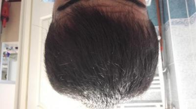 Hair-implants-turkey (24)