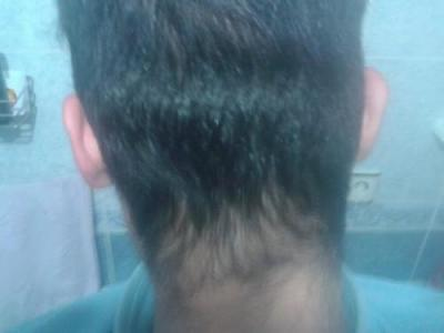 Hair-implants-turkey (6)