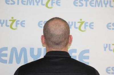 before-hair-transplant (1)
