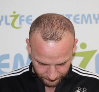 before-hair-transplant (3)