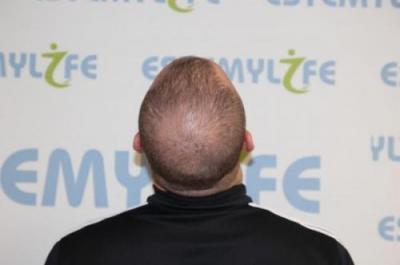 before-hair-transplant (4)