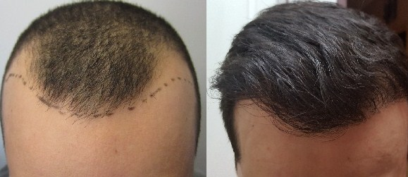 best hair loss treatment