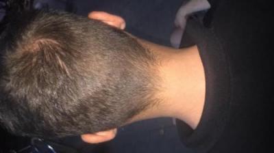 best hair transplant in istanbul (15)