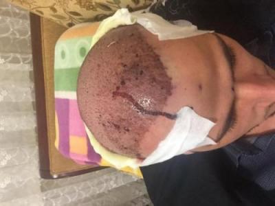 best hair transplant in istanbul (17)
