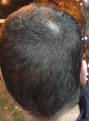 best hair transplant in istanbul (18)