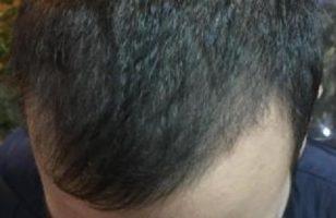 best hair transplant in istanbul (19)