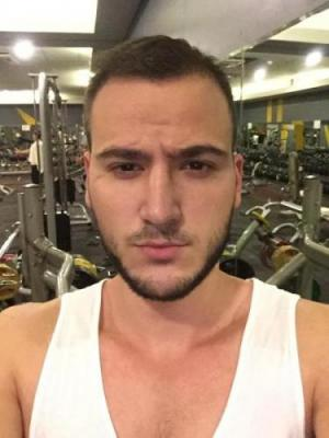 best hair transplant in istanbul (21)
