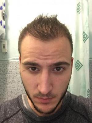 best hair transplant in istanbul (24)