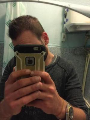 best hair transplant in istanbul (25)