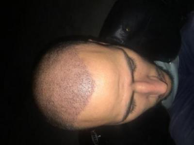 best hair transplant in istanbul (5)