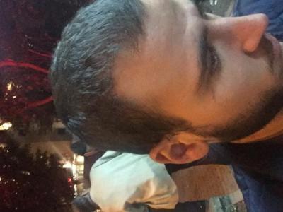 best hair transplant in istanbul (9)