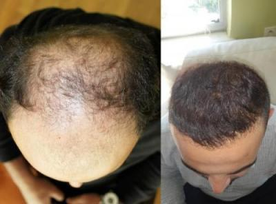 best-hair-transplant-in-turkey (1)