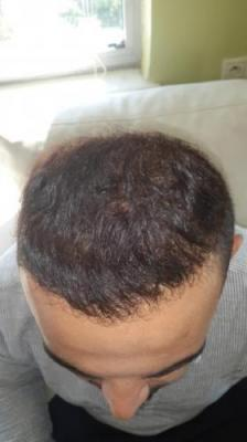best-hair-transplant-in-turkey (10)