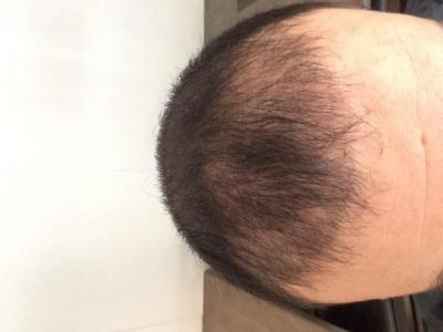 best-hair-transplant-in-turkey (11)