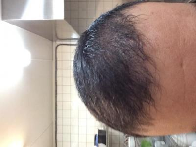 best-hair-transplant-in-turkey (12)