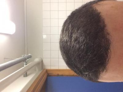 best-hair-transplant-in-turkey (15)