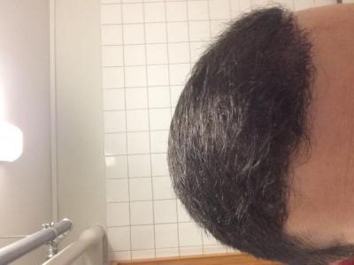 best-hair-transplant-in-turkey (16)
