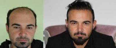 best-hair-transplant-in-turkey (16)
