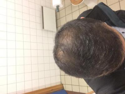 best-hair-transplant-in-turkey (17)