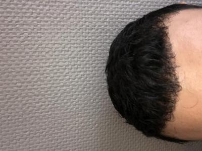 best-hair-transplant-in-turkey (19)
