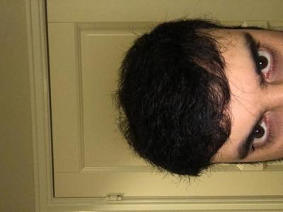 best-hair-transplant-in-turkey (2)