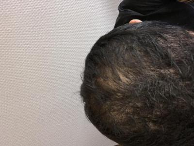 best-hair-transplant-in-turkey (21)