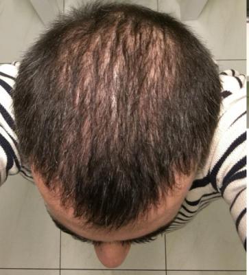 best-hair-transplant-in-turkey (25)