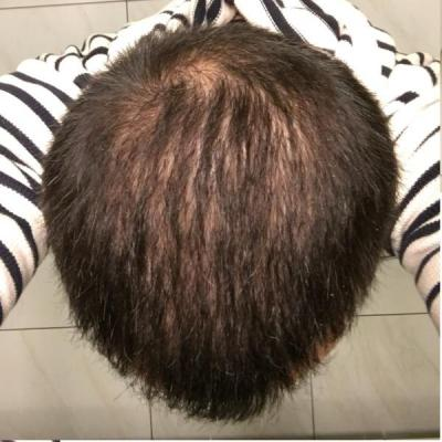 best-hair-transplant-in-turkey (26)