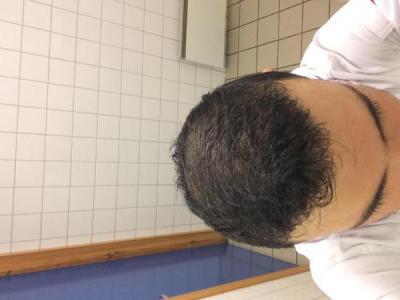 best-hair-transplant-in-turkey (27)