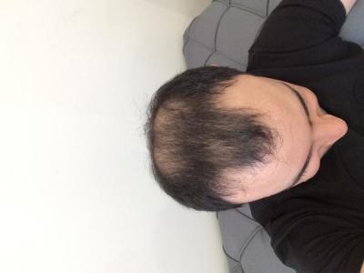 best-hair-transplant-in-turkey (3)
