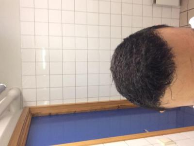 best-hair-transplant-in-turkey (30)