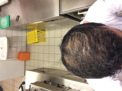 best-hair-transplant-in-turkey (32)