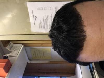 best-hair-transplant-in-turkey (35)