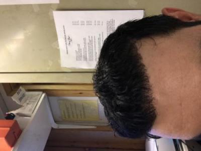 best-hair-transplant-in-turkey (36)