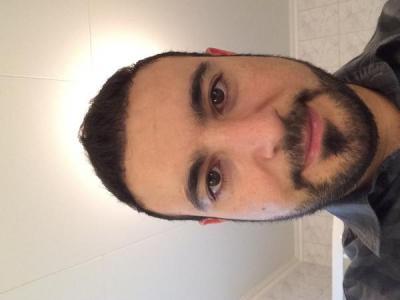 best-hair-transplant-in-turkey (4)