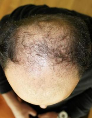 best-hair-transplant-in-turkey (5)