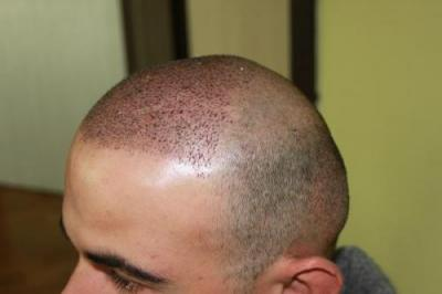 best-hair-transplant-in-turkey (7)