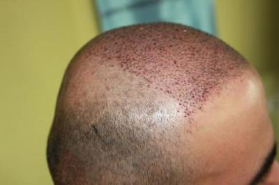best-hair-transplant-in-turkey (8)
