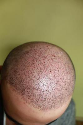 best-hair-transplant-in-turkey (9)