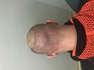 best-hair-transplant-turkey (1)