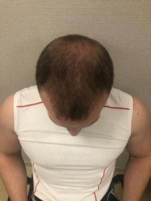 best-hair-transplant-turkey (11)