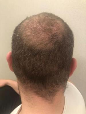 best-hair-transplant-turkey (12)