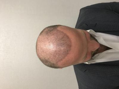 best-hair-transplant-turkey (2)