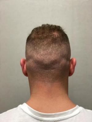 best-hair-transplant-turkey (20)