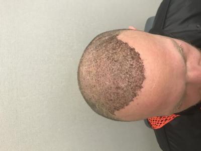 best-hair-transplant-turkey (25)