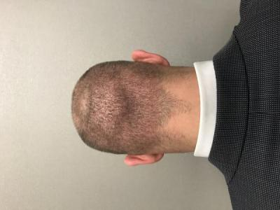 best-hair-transplant-turkey (3)