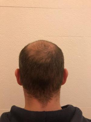 best-hair-transplant-turkey (4)