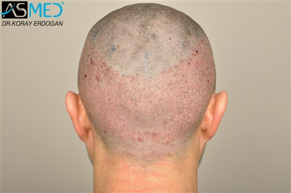 fue-hair-transplant-cost-turkey (2)