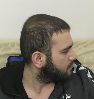 fue-hair-transplant-turkey (1)