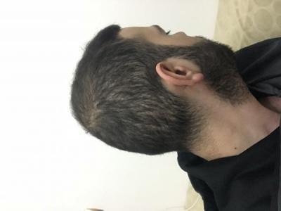 fue-hair-transplant-turkey (14)